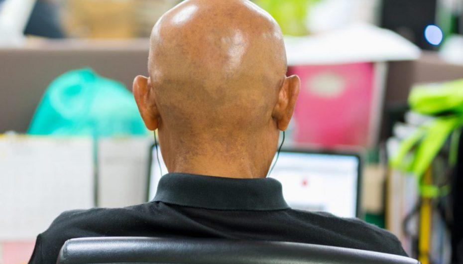 Studiohen mbi 13 mijë burra: Ata që punojnë shumë kanë dy herë më tepër gjasa të mbeten tullac
