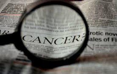 Shkalla e vdekjeve nga kanceri, shënon moment historik në SHBA: Ka rënë për 25 vjet