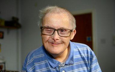 Sfidoi gjenetikën, 77 vjeçari është njeriu më i vjetër në Evropë me sindromën Down
